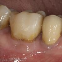 Fig. 3a : Le patient est revu à 3 mois : la dent est asymptomatique, fonctionnelle et sans fistule ni sondage