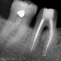 Fig. 3b : la radiographie ne montre aucune amélioration visible