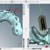 Fig 8 à 14 : Simulation de la place des implants sur l'imagerie 3D et le scanner