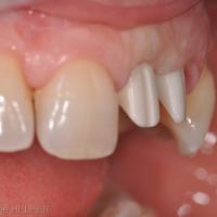 Fig 9 à 12 : Pose des piliers implantaires en zircone et contrôle radiographique