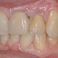 Fig 2: détail de la situation dento-gingivale au niveau des dents prothétiques