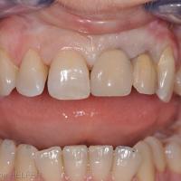 Fig 21 : Aspect des restaurations transitoires le jour même de la chirurgie