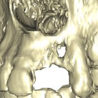Fig 5 : Imagerie 3D de la lésion osseuse antérieure