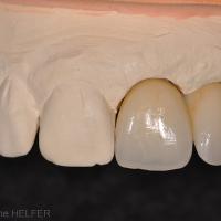 Fig 5 à 8 : restauration céramique dont on peut observer les détails de la surface au stade du biscuit et de la céramique glacée