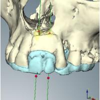 Fig 8 à 14 Simulation de la place des implants sur l'imagerie 3D et le scanner