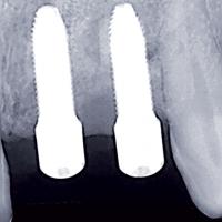 Fig 19 : Radiographie des implants en place