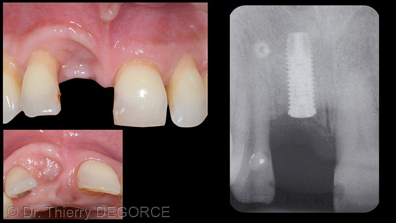 Défaut tissulaire nous place dans des conditions difficiles pour l'intégration esthétique de la future prothèse.