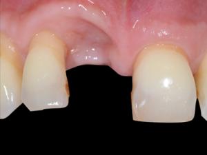 L'implant semble bien ostéointégré, mais un défaut tissulaire est évident