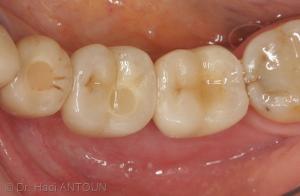Fig. 11 : Vue occlusale de la restauration sur les implants. Trois couronnes unitaires réalisées sur des chapes en zircone Procera sont transvissées directement sur les implants (Prothèse Dr Béatrice Silvestre, Laboratoire Zarakolu).