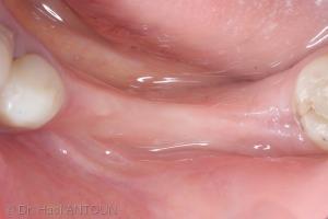 Fig. 4 : Vue de la crête à 3 mois post-extraction laissant apparaître le profil réduit de la crête osseuse sous jacente.
