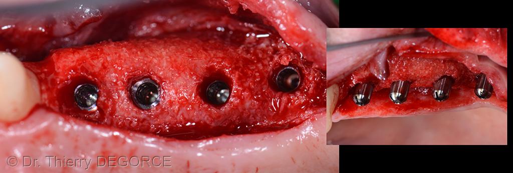 Grille titane 017 implantologie esth tique - Grille de salaire assistante dentaire ...