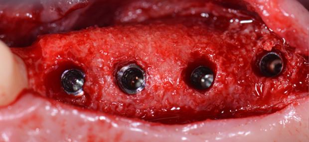 Grille titane slide2 implantologie esth tique - Grille de salaire assistante dentaire ...