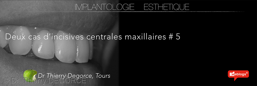 incisives_centrales_maxillaires_034