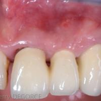 Fig 2a : Les dents 21, 22 et 23 supports de prothèses, doivent être retirées.