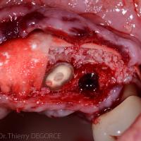 Fig 2c : Après 3 mois de cicatrisation, deux implants sont placés en site 21 et 23 et une ROG est associée.