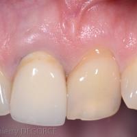 Fig 4a : L'incisive centrale 21 doit être extraite. Notez la forte linguaux-version de la dent.