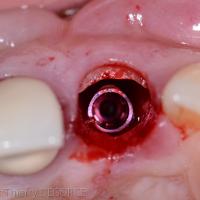 Fig 4b : La dent est extraite en préservant un fragment radiculaire en vestibulaire.