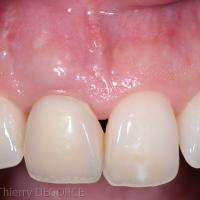 Fig 5f : Une dent temporaire immédiate a été placée.