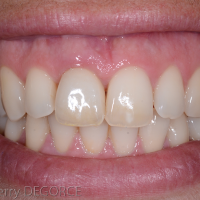 Fig 5k : Après 2 ans, l'interface entre les tissus mous et la prothèse est parfaitement sain et présente une excellente stabilité. La restauration implantaire s'intègre bien dans le sourire de la patiente.