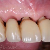 Fig 6e : La prothèse définitive en place s'intègre harmonieusement dans l'environnement muqueux.