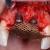 Reconstruction osseuse des défauts majeurs à l'aide des grilles titane (titanium mesh)  #3