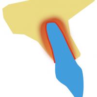 Lorsqu'une dent subi une force, le desmodonte permet son absorption sur toute la surface de sa/ses racine(s)