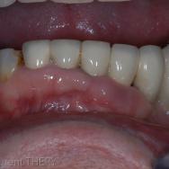 Cas initial : Les dents antérieures mandibulaires sont condamnées, elles seront extraites et remplacées par des implants.