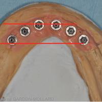 Arcade mandibulaire de forme carrée. Les implants sont plus alignés dans le sens transversal. La longueur des extensions distales sera réduite.