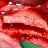 L'expansion osseuse souhaitée en vestibulaire est importante.