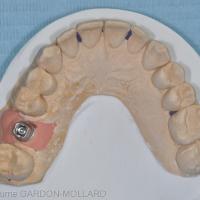 Fig. 1a : remplacement d'une 16 par une prothèse scellée. Vue occlusale du pilier prothétique.