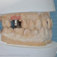 Fig. 1b : remplacement d'une 16 par une prothèse scellée. Vue latérale du pilier prothétique.