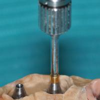 Fig. 3b : Ces piliers coniques présentent un pas de vis permettant de recevoir une vis de prothèse de petite dimension.