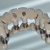 Fig. 3c : La prothèse sera trans-vissée sur chacun des piliers coniques.