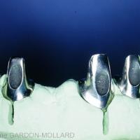 - Fig. 9 : La position et l'angulation trop vestibulaires des implants obligent le recours à une solution scellée.