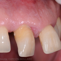 Fig. 1a : Situation initiale. Les dents 11 et 21 sont perdues.
