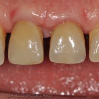 Fig. 2a : Situation clinique après temporisation post-chirurgicale.