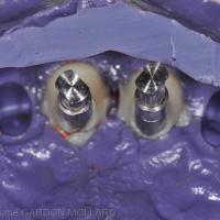 Fig. 5d : Empreinte implantaire en technique pick-up.