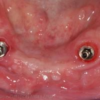 Fig. 1b : vue clinique des deux implants mandibulaires