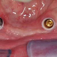 Fig. 3b : le boitier Locator® est clippé sur l'implant de droite