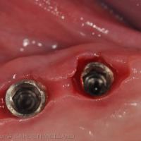 Fig. 4a : démontage des barres implantaires