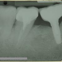 Fig. 3 : Radiographie rétro-alvéolaire