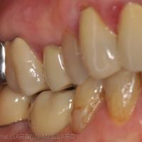 Fig. 2 : Vue latérale mandibulaire droite