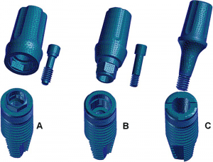 Fig. 1 : les trois types de connectique implantaire. A : connexion externe, B : connexion interne statique, C : connexion interne dynamique conique (cône-Morse)