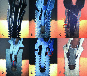Fig. 2 : Différents modes d'échec en fonction de la géométrie de la connectique implantaire. D'après Dittmer et coll. 2011.
