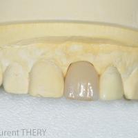Photo 1 : Coiffe en céramique implantaire sur modèle en plâtre Intégral. Laboratoire Moinard-Crozet à Villedoux.