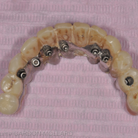 Fig. 1c : Ancienne prothèse après dépose.