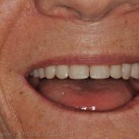 Fig. 3b : Validation du positionnement des dents maxillaires.