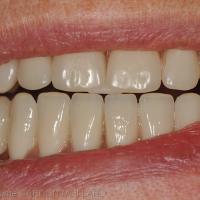 Fig. 1b : La butée empêche l'engrènement des dents postérieures et permet de centrer les condyles dans les fosses articulaires.