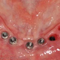 Fig. 2a : Situation initiale des implants mandibulaires