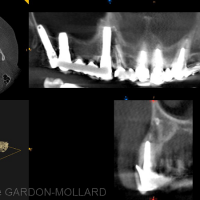 CBCT – coupe en site 13